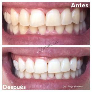 Dentista, blanqueamiento dental, resinas, limpiezas
